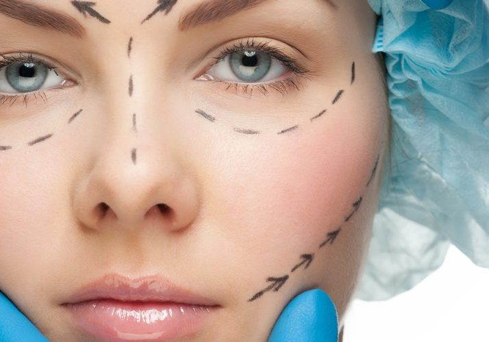 Important Things to Consider Before Getting Botox